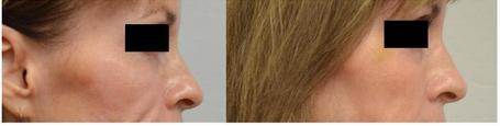 Filler Nose Augmentation Philadelphia