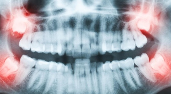 dental wisdom teeth extraction Brossard-Laprairie