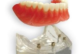 Denture On Implants Michel Puertas Denturologiste Brossard-Laprairie