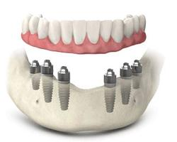 Denture Fix-On-6 Clinique Implantologie Dentaire Brossard-LaPrairie