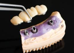 Pont dentaire sur implants dentaire Brossard-Laprairie