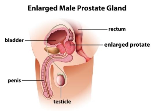 Disorders of Prostate – Etiology and Risk Factors, Pathophysiology, Clinical Manifestations, Diagnostic Evaluations, Medical Management, Surgical and Nursing Management