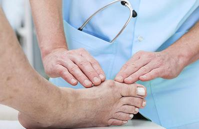 Bunion Treatment by Podiatrist in Mississauga, ON