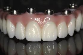 Prothèse Dentaire Fixe Zircon Sur Implants Michel Puertas Denturologiste Brossard-Laprairie, Fixed Denture On Implants Michel Puertas Denturologiste Brossard-Laprairie