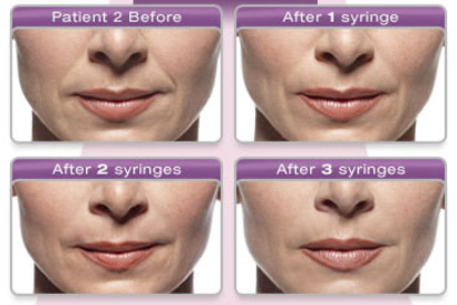 Juvederm Injection Philadelphia