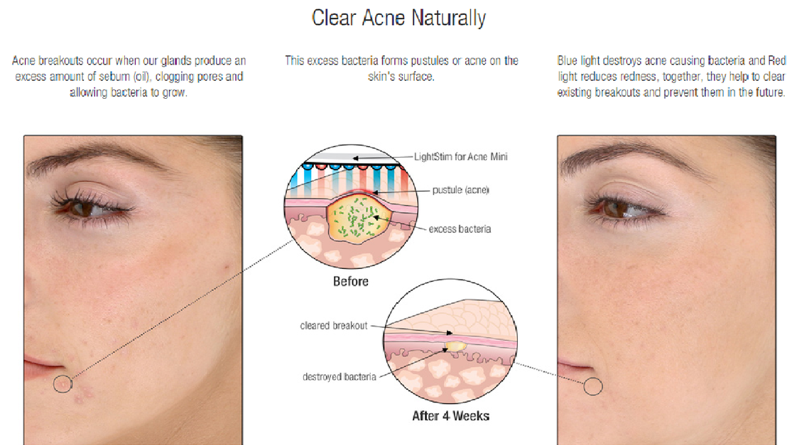Uv Light Kills Bacteria Acne Decoratingspecial Com