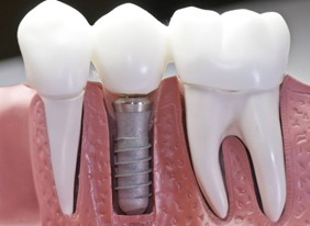 Dental crown on dental implant Brossard-Laprairie