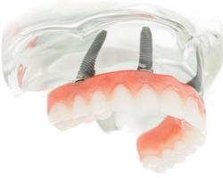 Denture Fix-On-5 Clinique Implantologie Dentaire Brossard-LaPrairie