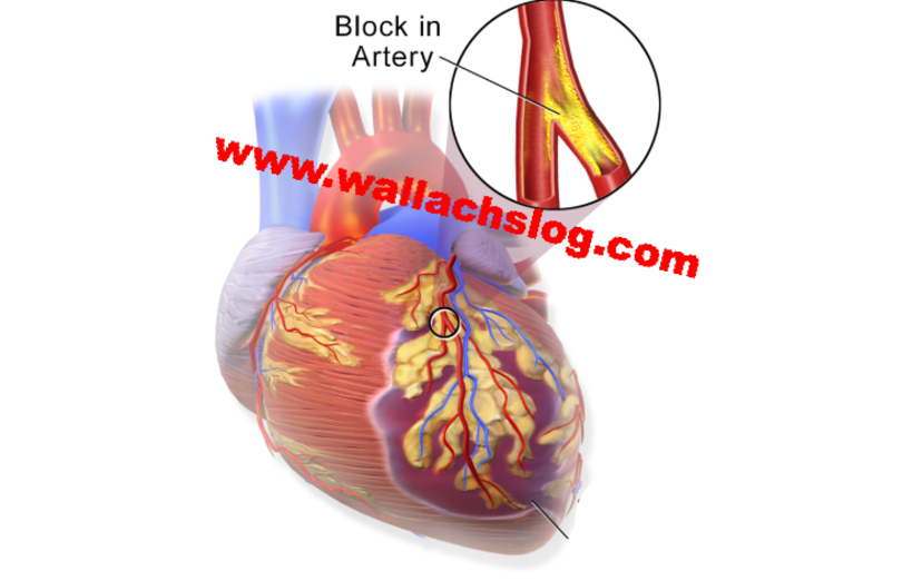 Heart Artery Obstruction - Dr. Joel Wallach