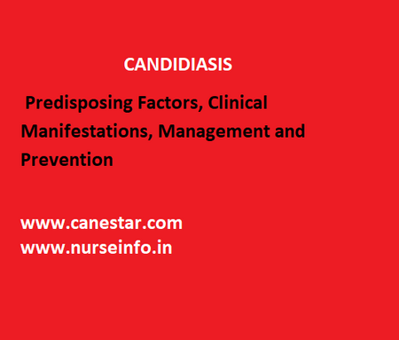 CANDIDIASIS – Predisposing Factors, Clinical Manifestations, Management and Prevention