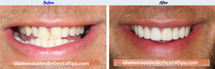 Smile Makeover – Before and After