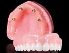 denture on implants click Brossard-Laprairie