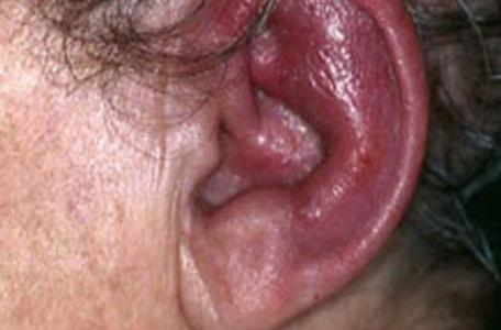 RELAPSING POLYCHONDRITIS – Clinical Manifestations, Diagnostic Evaluations and Management