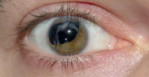 DISEASES OF LENS (Cataract) Causes and Risk Factors, Classification, Clinical Manifestations, Diagnostic Evaluations and Nursing Management