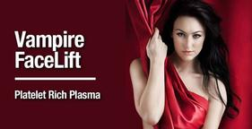 vampire facelift with prp