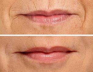 Silk Lip Filler