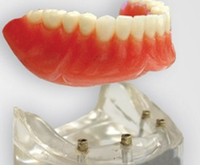 Dental complete lower denture on 4 dental implants Brossard-Laprairie