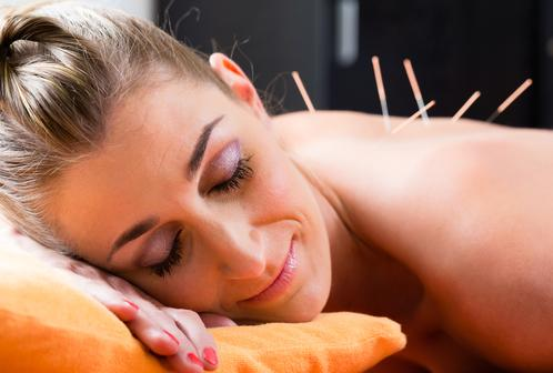 Female, eyes closed, light brown hair pulled back, enjoying acupuncture needles inserted in her back as she lays on her right cheek, face down on orange pillow