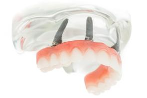Prothèse Dentaire Fixe Sur Implants Michel Puertas Denturologiste Brossard-Laprairie, Fixed Denture On Implants Michel Puertas Denturologiste Brossard-Laprairie
