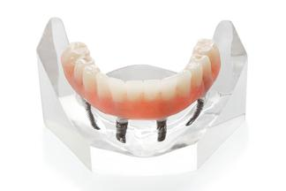 Prothèse Dentaire Fixe Sur Implants Fix-On-4 Michel Puertas Denturologiste Brossard-Laprairie, Fixed Denture On Implants Fix-On-4 Michel Puertas Denturologiste Brossard-Laprairie