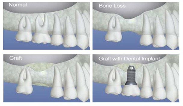 dental bone graft dental sinus graft Brossard-Laprairie