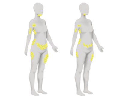 in the u s , the coolsculpting procedure is fda-cleared for the treatment  of visible fat bulges in the submental area, thigh, abdomen and flank,