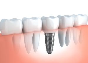 A visual of dental implants in Lafayette, NY