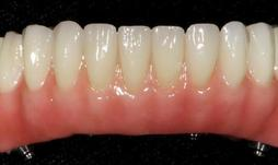Prothèse Fixe Fix-On-Zircon Fixed Denture Fix-On-Zircon Brossard-Laprairie