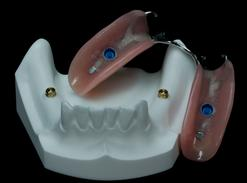 "PARTIAL DENTURE ON IMPLANTS ""CLICK"" Michel Puertas Denturologiste Brossard-Laprairie"