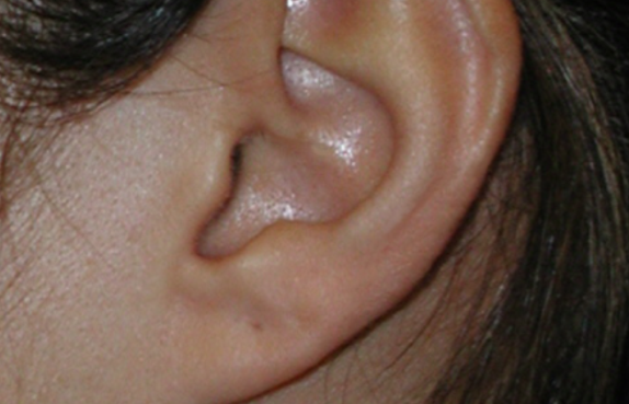 Ear Tumor - Dr. Joel Wallach