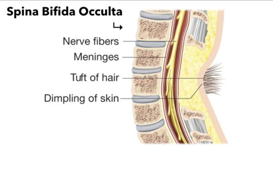 Spina Bifida Occulta - Dr. Joel Wallach