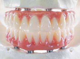 fixed denture on implants Brossard-Laprairie