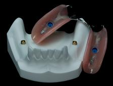 Partial Denture On Implants Clinique Implantologie Dentaire