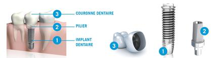 Couronne sur implant Clinique Implantologie Dentaire