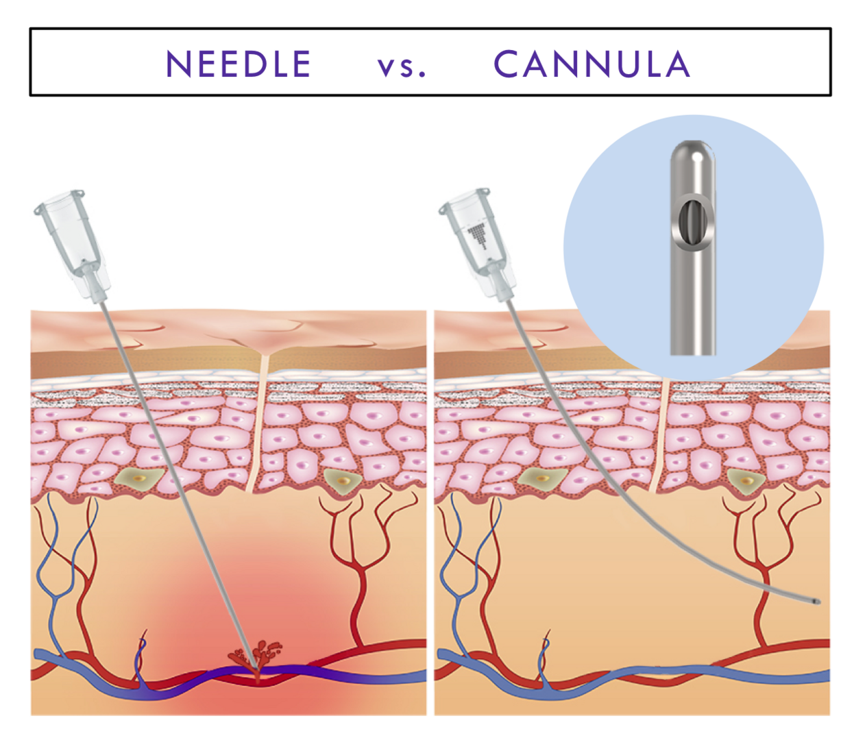 Dermal filler cannula