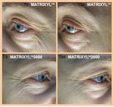 Matrixyl peptide serum, Pure Radiance Natural Skin Care, organic anti aging skin care products
