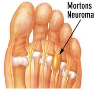 Podiatrist Mississauga Neuroma Treatment