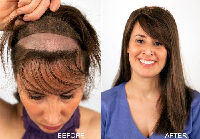hair restoration, hair system for women, hair bonding, hair