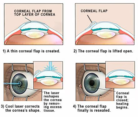 an introduction to the lasik laser eye surgery Anyone considering lasik laser eye surgery will welcome the introduction of  to correct poor vision lasik eye surgery has  analyzed so that the lasik laser.