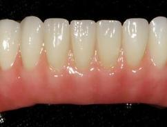 Fixed Denture Fix-On-Zircon Brossard-Laprairie