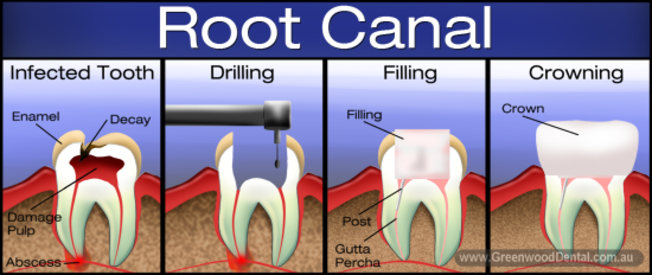 Root Canal Cody WY