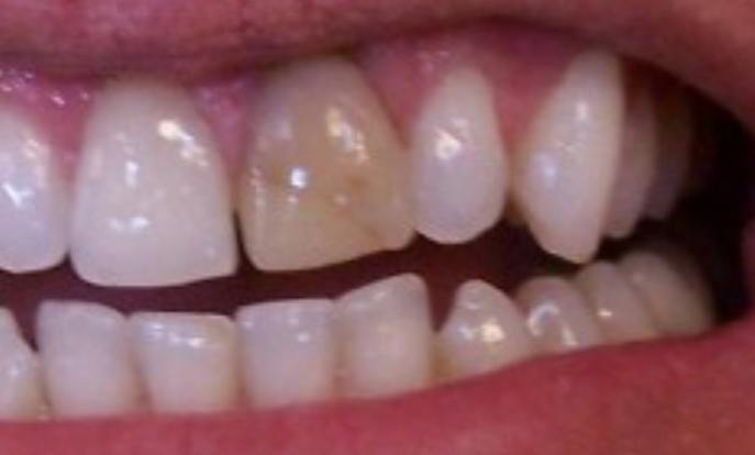 Tooth Discoloration - Dr. Joel Wallach