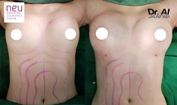 Breast fat grafting transfer Philippines before and after photos