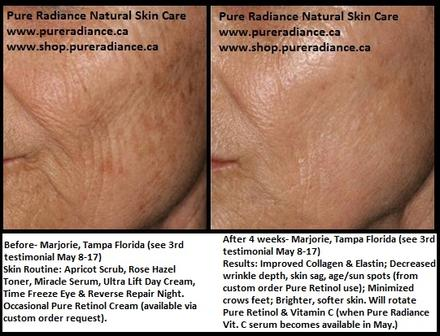 Pure Radiance Testimonials Before and After Results