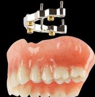 Denture On Implants With Bar Brossard-Laprairie