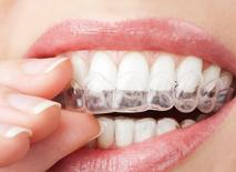 blanchiment des dents maison Brossard-Laprairie, teeth whitenig home Brossard-Laprairie