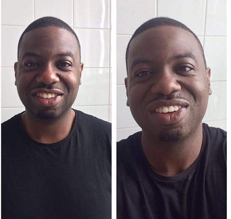 Before & Afters – BM Cosmetics For Men