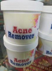 ACNE REMOVER CREAM -01
