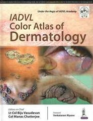 IADVL Color Atlas of Dermatology by Lt Col Biju Vasudevan & Col Manas Chatterjee