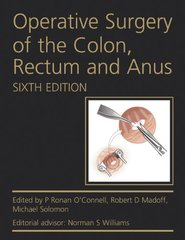Operative Surgery of the Colon, Rectum and Anus, 6th Edition 2015 (Paperback) by Connell